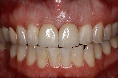 Healthy smile after cosmetic dentistry