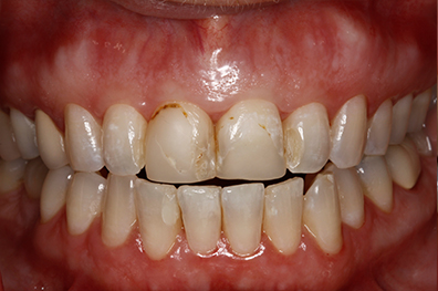 Damaged and decayed top front two teeth before cosmetic dentistry