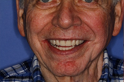 Older man with flawless smile after cosmetic dentistry