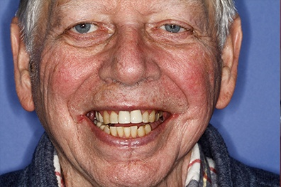 Older man with imperfect smile before cosmetic dentistry
