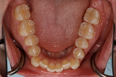 Back two teeth repaired with tooth colored dental restorations