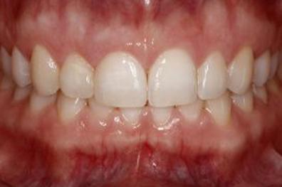 Smile enhanced with cosmetic dentistry