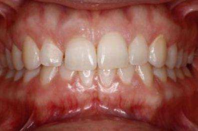 Worn and small top tooth before cosmetic dentistry
