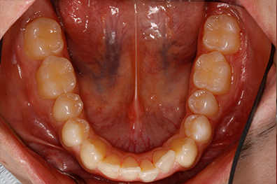 Back teeth on both sides repaired with dental crowns