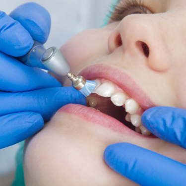 Patient receiving professional fluoride treatment