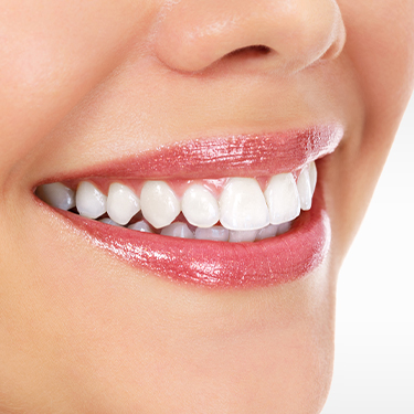 Closeup of healthy smile after scaling and root planing
