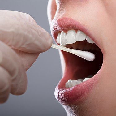 Dentist conducting a salivary test