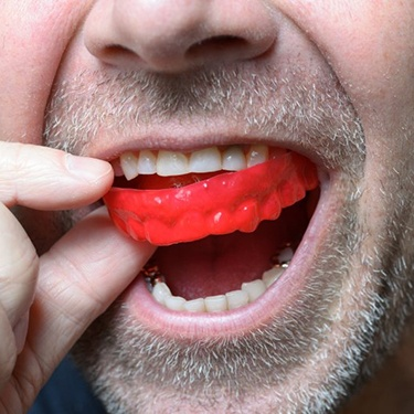 man putting red mouthguard over his teeth
